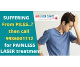 Laser Treatment for Piles in bangalore