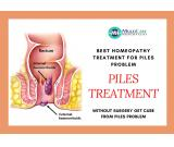 6 Best Homeopathic Medicine for PILES Treatment| which can avoid surgery.